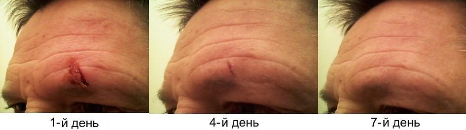 Как сделать что бы рана зажила 345